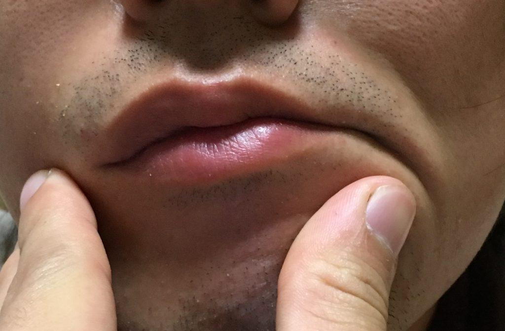 口元の青髭